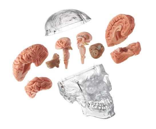 Homo-Schädel mit 8teiligen Gehirn