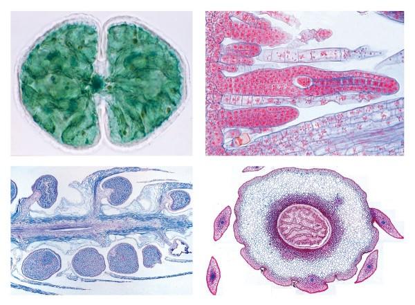 Blütenlose Pflanzen (Cryptogamae), Ergänzungsserie II, 25 Präparate