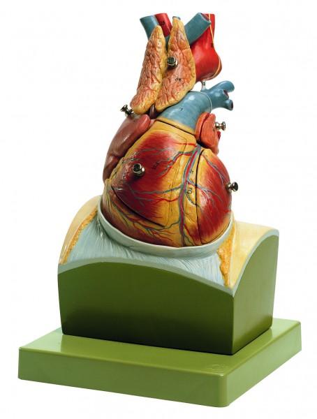 Herz auf Zwerchfellsockel