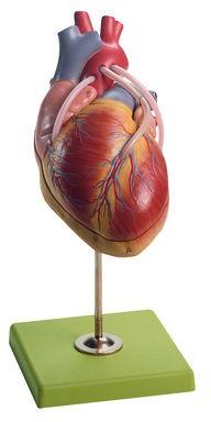 Herzmodell mit Bypassgefäßen (aortakoronarer Venenbypass)