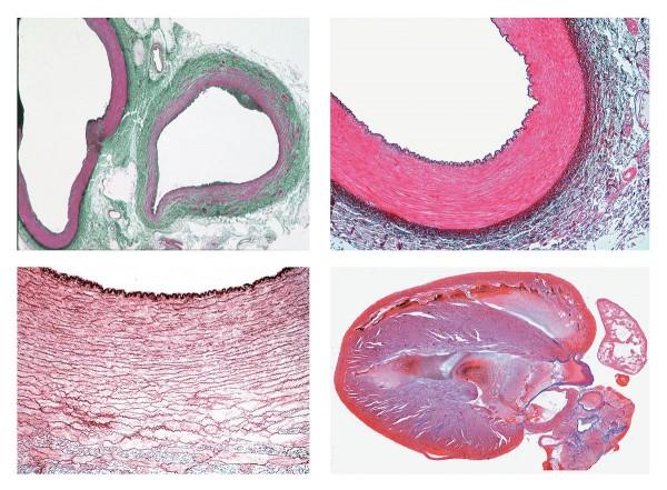 Histologie. Kreislaufsystem, 8 Mikropräparate