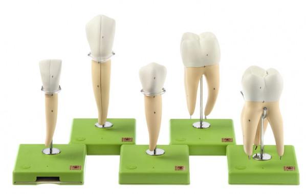 Fünf Zahnmodelle