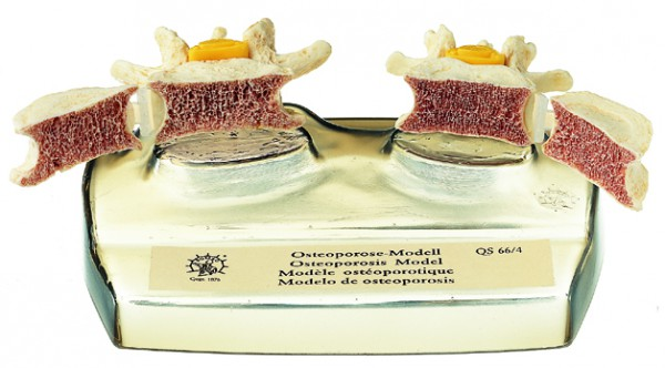 Osteoporose-Modell