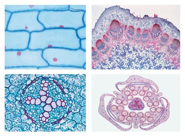 Blütenpflanzen (Phanerogamae), Grundserie, 25 Mikropräparate