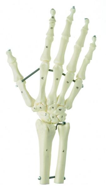 Handskelett mit Unterarmansatz (Elastische Montage)