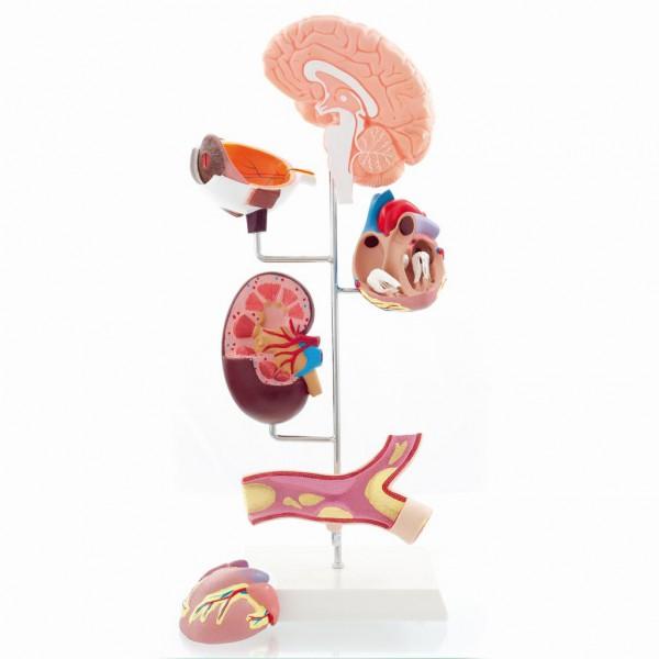 Modell der Bluthochdruck-Folgen