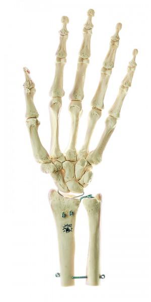 Handskelett mit Unterarmansatz (starr)