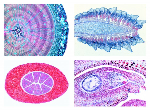 Serie Nacktsamer (Gymnospermae), 15 Präparate