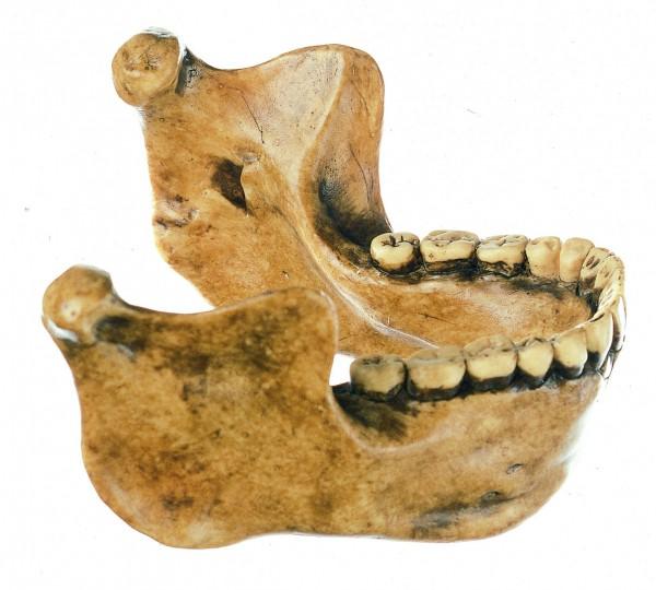 Unterkiefer von Mauer bei Heidelberg, Homo heidelbergensis