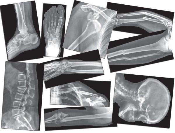 Röntgenbilder Knochenbrüche