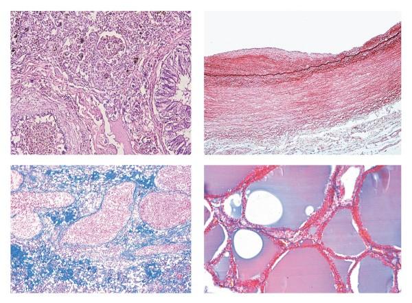 Pathologische Histologie des Menschen, Basisserie, 50 Mikropräparate