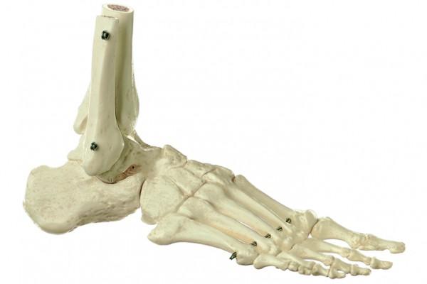 Fuss-Skelett (starr)