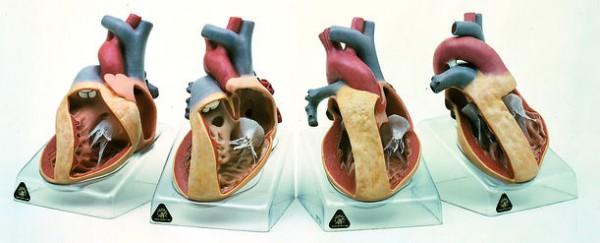 Modellserie mit der Darstellung angeborener Herzfehler