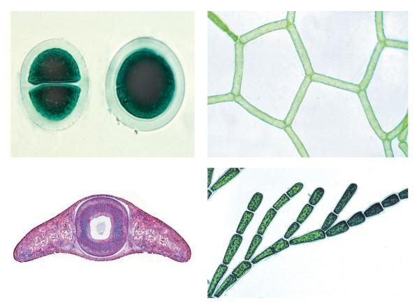 Das Leben im Wassertropfen Teil II, Die Kleinlebewelt unserer Gewässer, 25 Präparate